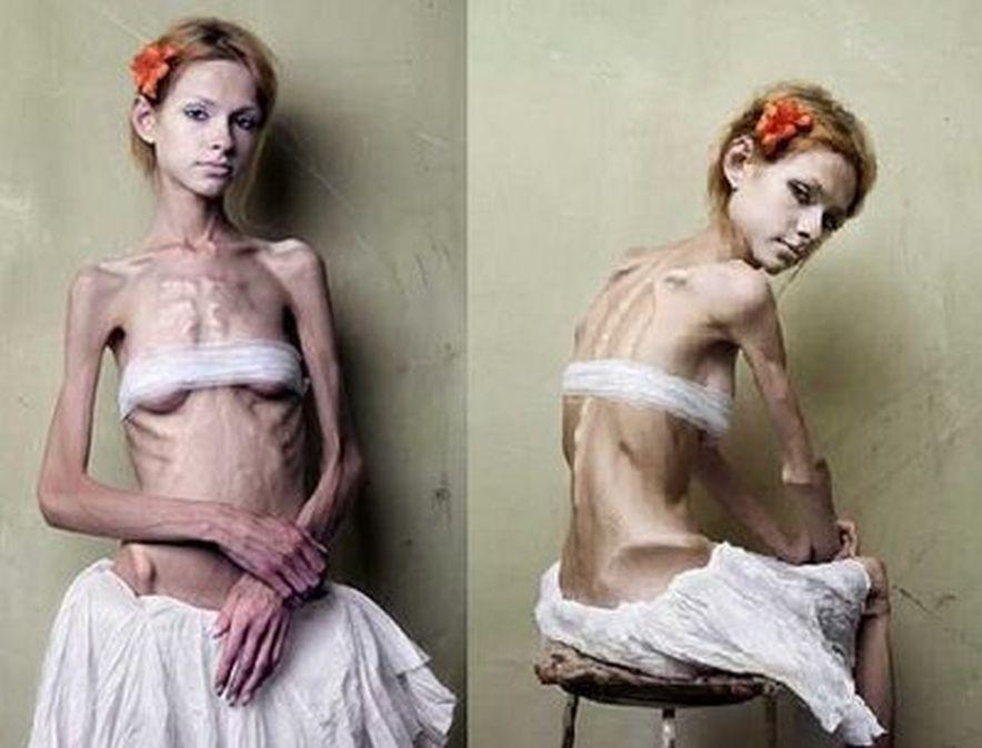 Anoreksiya